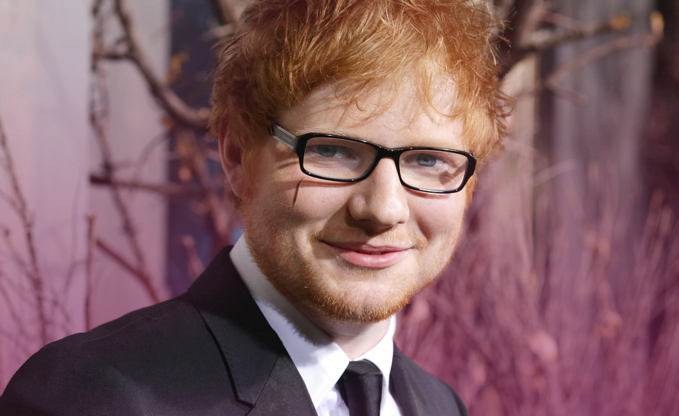 Ed Sheeran face cut